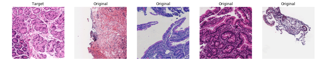 Non-stained representation of pre and post color normalization biopsy images