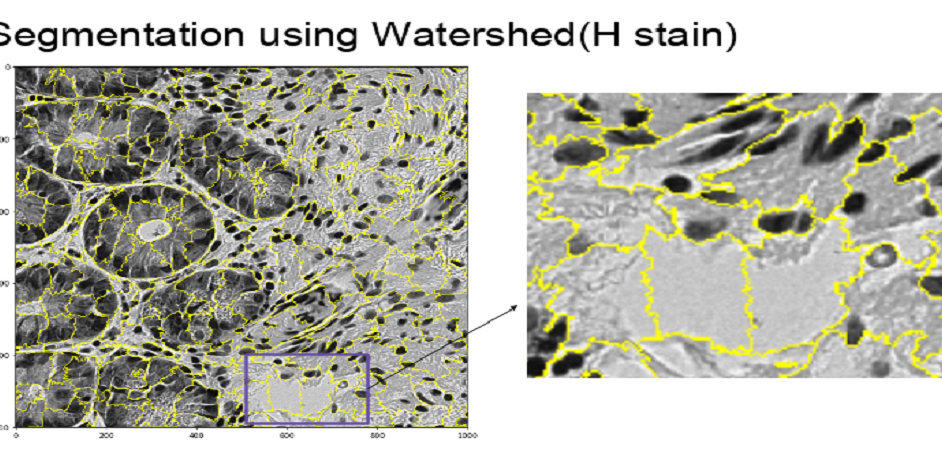 Segmentation using Watershed (H stain)