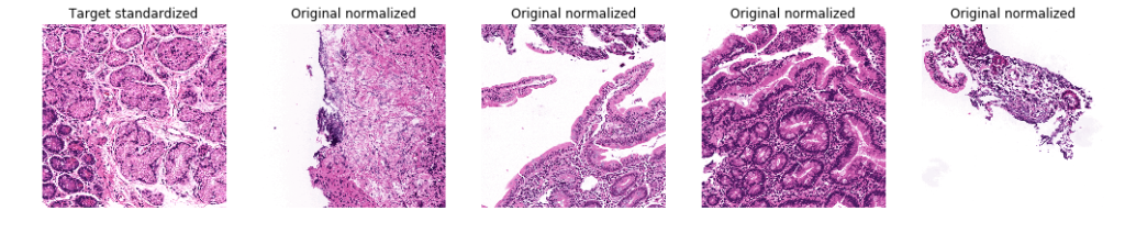 Stained representation of pre and post color normalization biopsy images