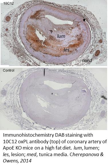 oxPL immunohistochemistry