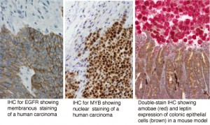 3 images(left) IHC for EGFR showing membranous staining of a human carcinoma (middle) IHC for MYB showing nuclear staining of a human carcinoma (right) double-stain IHC Showing amobae (red) and leptin expression of colonic epithelial cells brown in a mouse model.