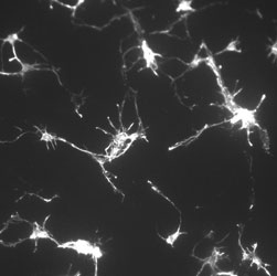 photo of Phalloidin-cortical neurons from mouse brain