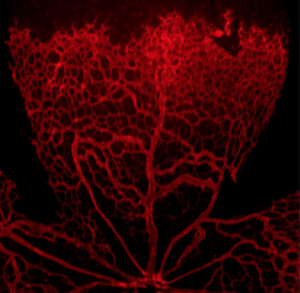 arteriovenous shunt in the mouse retina.