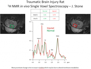 effects of traumatic brain injury assesed with choline detected by NMR