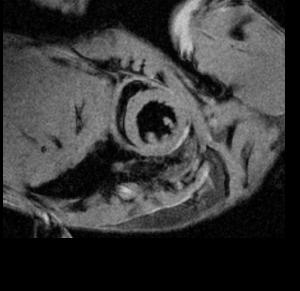MRI-black blood imaging