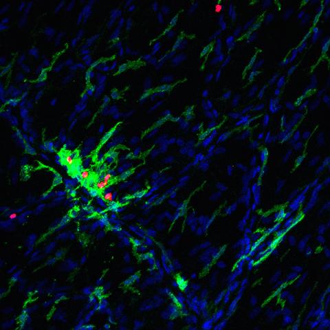 antigenpresentingcells