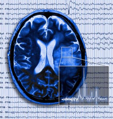 Brain Tumor with Seizure - Sontheimer Lab