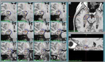 Gamma Knife plan for mesial temporal lobe epilepsy