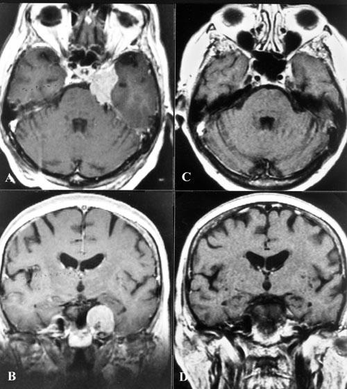 Meningiomas-fig16