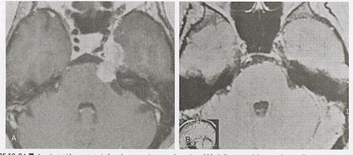 Metastatic-tumors-fig24