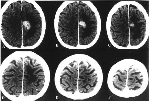 Metastatic-tumors-fig25