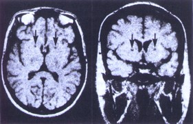 Axial (left) and coronal (right) MRI's illustrating the imaging appearance of bilateral capsulotomies (arrows) seven years after surgery