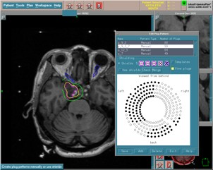 Gamma Knife planning illustrating plugging to preserve the optic apparatus.