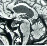 pituitary_adenomas2