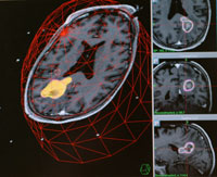 MRI brain tumors