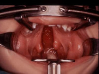 photo of treatment of cleft palate