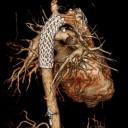 Angio & Interventional Radiology