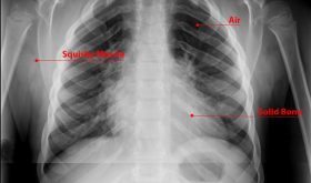 What is an X-ray? (For Kids)