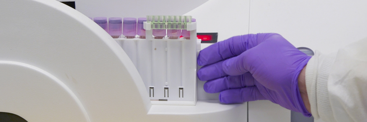 "<a href=""https://news.med.virginia.edu/blog/new-blood-test-at-uva-offers-better-monitoring-of-diabetes/"">A new, more precise version of the A1C test, is now being offered at the UVA Health System. The improved test allows people with diabetes to more accurately track how well they've controlled their blood sugar over the span of months. Learn More...</a>"