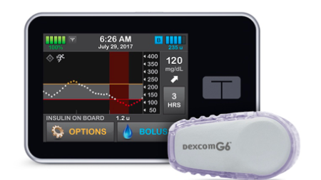 Image: Control-IQ diabetes management system
